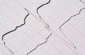 Gráfico de ECG