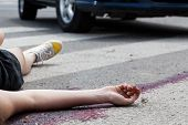 Unconscious Woman At Accident Scene