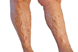picture of varicose  - Two tanned legs with varicose veins on white background - JPG