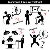 foto of spines  - Spondylosis and Spondylolisthesis and Surgical Treatment Pictogram - JPG