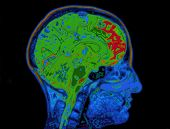 image of mri  - MRI Image Of Head Showing Colorized Brain - JPG