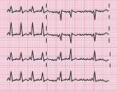 Heart Beats Cardiogram