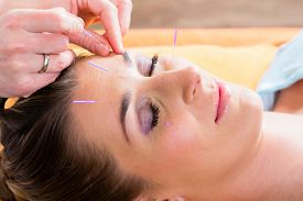picture of therapist  - Therapist setting acupuncture needles on woman in course of acupuncture treatment - JPG