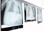 Children's Chest X-ray.