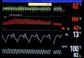 picture of icu  - Heart monitor screen - JPG