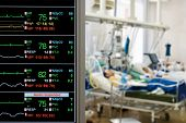picture of icu  - ICU monitor with several patients - JPG