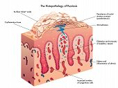 picture of scalping  - medical illustration of the effects of the psoriasis - JPG