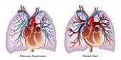 stock photo of hypertensive  - medical illustration of the effects of the Pulmonary hypertension - JPG