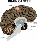 picture of tumor  - A brain tumor is an abnormal growth of tissue in the brain - JPG