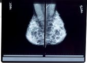stock photo of mammogram  - a twin x - JPG