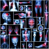 Collection X-ray Part Of Human,orthopedic Operation,multiple Disease