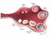 stock photo of endocrine  - Female Ovary - JPG