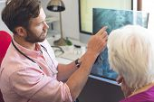 High angle view of a Caucasian male doctor and a Caucasian senior female patient discussing over x r poster