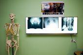 X-ray Photo's