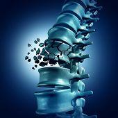 Постер, плакат: Spinal Fracture