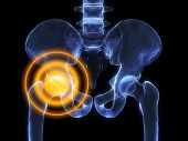 Hip Inflammation
