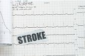 picture of flatline  - Stroke with actual ecg ekg chart  - JPG