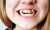 stock photo of overbite  - close up  - JPG