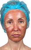 Cosmetology. Skin condition after chemical peeling TCA. person full face