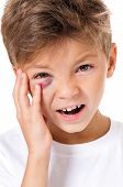 stock photo of bruises  - Portrait of boy with real eye bruise - JPG