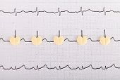 pic of electrocardiogram  - Electrocardiogram graph report with heart shape pills on it - JPG