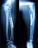 X-ray Of Fractured Leg Bone