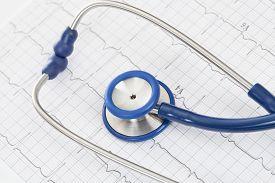 image of ekg  - Stethoscope with ekg cardiogram chart  - JPG