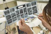 Examinar o relatório de raio-x de dente do paciente na clínica de mulher