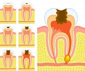 stock photo of inflamed  - Some illustrations of an internal structure of tooth - JPG