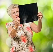 Sad Senior Woman Looking At X Ray, Outdoors