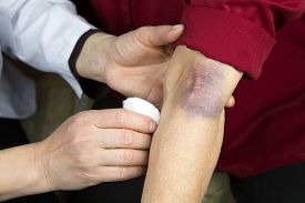 pic of bruises  - Large hematoma on human arm. Injection bruises. Doctor and patient ** Note: Visible grain at 100%, best at smaller sizes - JPG