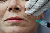 stock photo of fat lip  - Senior woman getting skin care injection - JPG