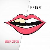 Vector Mouth on White Background. Cleaning Teeth, Before and After.
