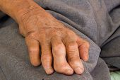 right Hand Of A Leprosy.