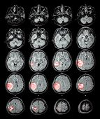 image of mri  - MRI brain  - JPG