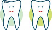 Teeth - Before and after (Vector illustration)