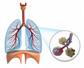 stock photo of bronchus  - Alveoli in lungs  - JPG