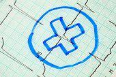 Medical Cross On Electrocardiogram