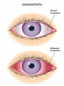 stock photo of pus  - medical illustration of the effects of conjunctivitis - JPG