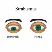 picture of squinting  - Diseases of the eye  - JPG