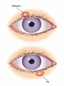 picture of excretory  - medical illustration of symptoms of chalazion and sty - JPG
