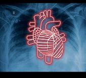 Chest X-ray And Heart. The Idea For The Medical Concept