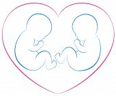 stock photo of twin baby girls  - Outline illustration of two babies or twins with a pink heart around them - JPG