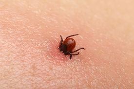 image of ixodes  - Encephalitis tick  Ticks on human skin - JPG