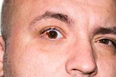 Eye Injury, Young Man With Burst Blood Vessel In Eye, Fatigue, Problems With Blood Vessels poster