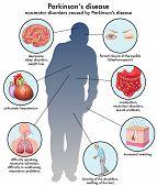 Parkinson's disease\