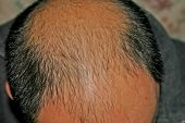 stock photo of bald man  - male pattern baldness bald head chinese man - JPG