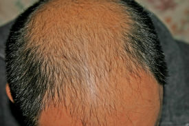 foto of male pattern baldness  - male pattern baldness bald head chinese man - JPG