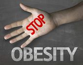 image of obese  - Creative composition with the message Stop Obesity - JPG