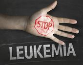 Educational and Creative composition with the message Stop Leukemia on the blackboard